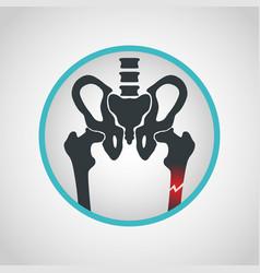 Bone fracture logo icon design vector