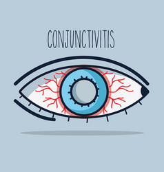 Conjunctivitis allergic inflammation of vision eye vector