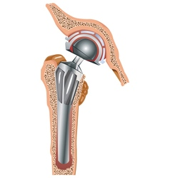 cementless arthroplasty vector image vector image