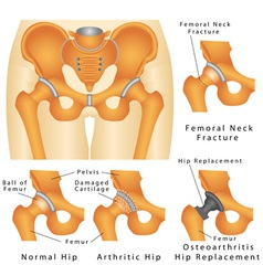 Hip joint vector