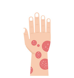 Hand with psoriasis or eczema vector