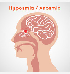 hyposmia and anosmia logo icon design vector image vector image