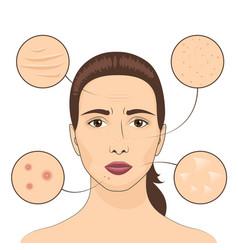 Woman skin problem female vector