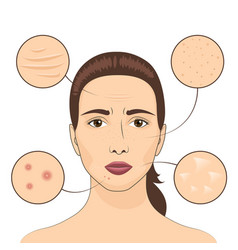 Woman skin problem female vector