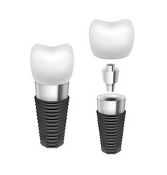 Tooth implant vector