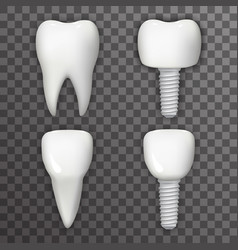 dental implant realistic 3d tooth poster vector image