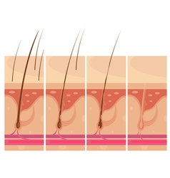 Hair loss skin concept vector