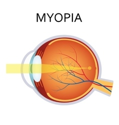 Myopia myopia is being short sighted vector