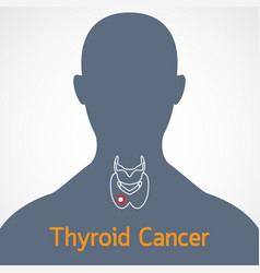 thyroid cancer icon vector image