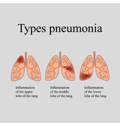 Pneumonia the anatomical structure of the human vector