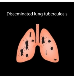 Disseminated tuberculosis on vector