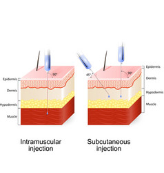 Intramuscular injection and Subcutaneous injection vector image vector image