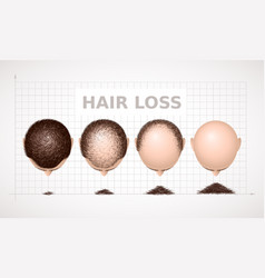 Hair loss graph of four stages of alopecia vector