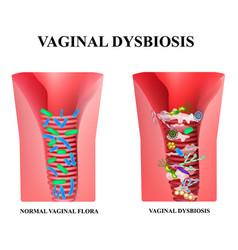 Vaginal dysbiosis dysbacteriosis vagina vaginitis vector