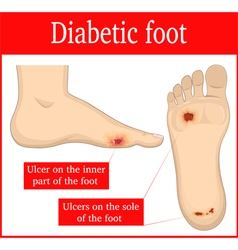 Diabetic foot vector