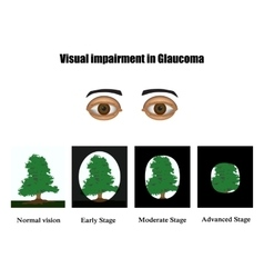 Glaucoma The field of vision in glaucoma vector image vector image