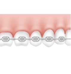 Teeth with metal braces vector
