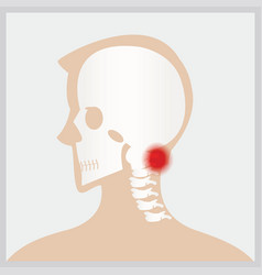 Disease of head and neck vector