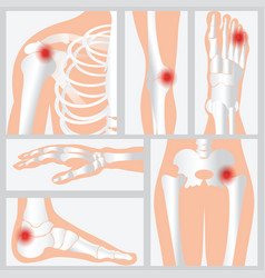 Disease of the joints and bones vector