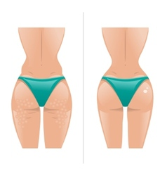 Cellulite and healthy skin vector