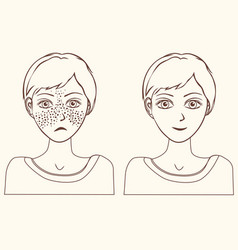Concept for girl remove freckles outline vector