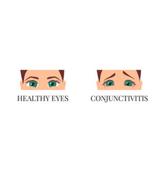 Woman with conjunctivitis vector