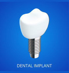 Isometric tooth human implant dental concept vector