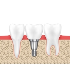 Dental human implant vector