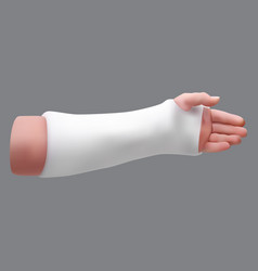 Gypsized broken arm isolated realistic object vector