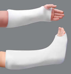 Plastered leg and arm treatment of a broken leg vector