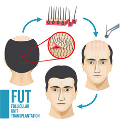 Male hair loss treatment medical vector