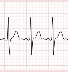 Cardiogram electrocardiogram graphic vector
