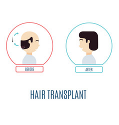 Hair transplant for men vector
