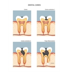 Caries vector