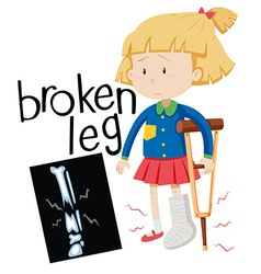 Girl with broken leg and x-ray film vector