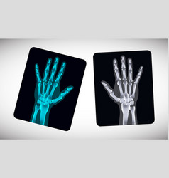 Radiography picture of human hands on the film vector