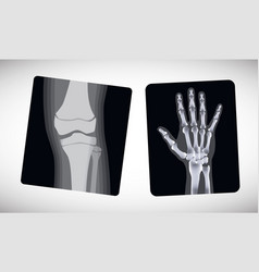 X-ray of the hand and foot vector