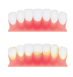 Teeth and gums vector