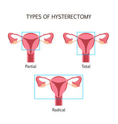 types of hysterectomy vector image