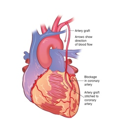 Heart bypass vector