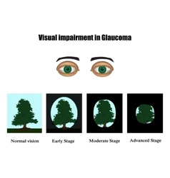 Glaucoma the field of vision in glaucoma vector