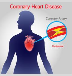 Coronary heart disease logo icon vector