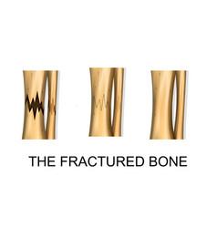Bone fracture trauma vector