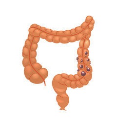 Realistic human sick colon isolated on white vector