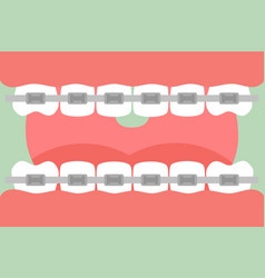 orthodontics teeth or dental braces vector image vector image