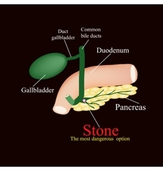 Stone pancreatic bile duct the gall bladder vector