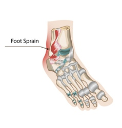 Foot sprain vector