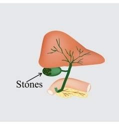 The stones in the gallbladder duodenum pancreas vector