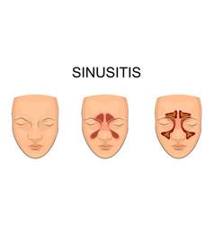 Nasal sinus inflammation vector