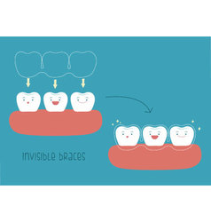 How to of invisible braces by tooth concept vector